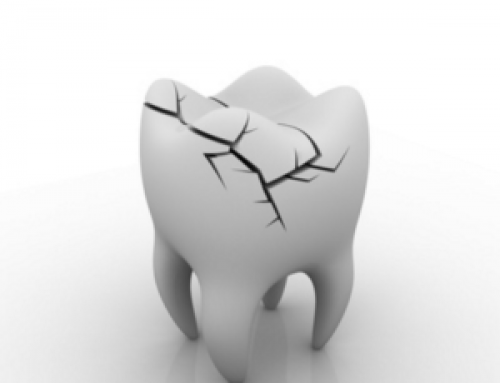 How Can A Dentist Fix A Broken Tooth?