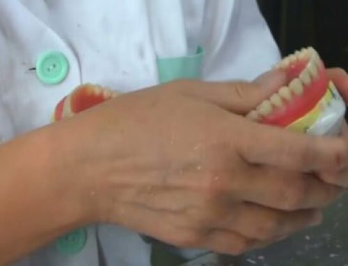 What is there to expect when getting dentures?
