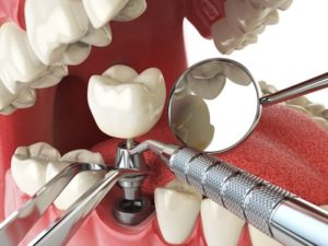 Why Do Dental Implants Fail - Acadia Dental
