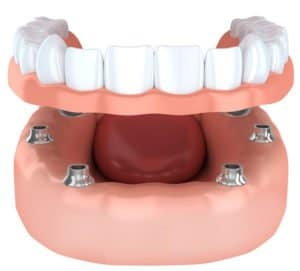 snap on dentures - acadia dental
