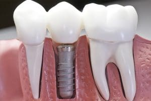 Dental Implant Model at Acadia Dental in Hagerstown and Frederick, MD