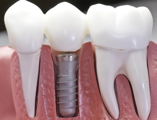 Dental Implants in Frederick 21701