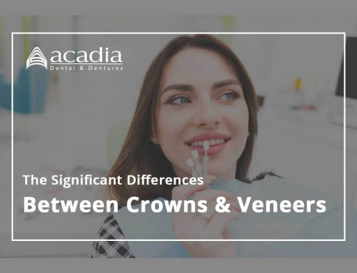 The Significant Differences Between Crowns & Veneers