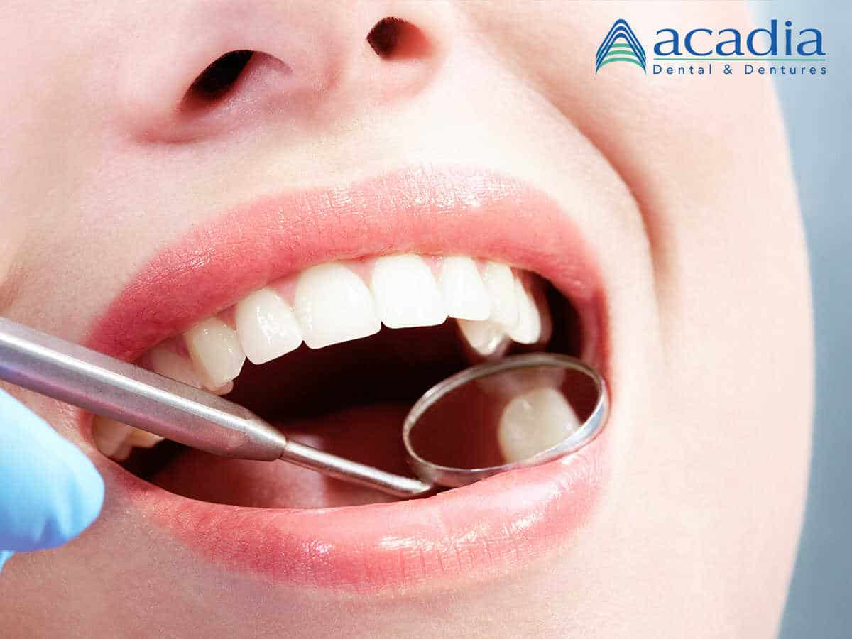 The Benefits Of Porcelain & Composite Fillings For Your Cavities in Hagerstown, MD