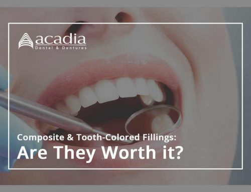Composite & Tooth-Colored Fillings: Are They Worth It?